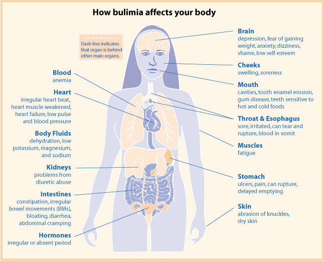 Eating Disorders Anorexia Bulimia Disorder Eating Eng Health