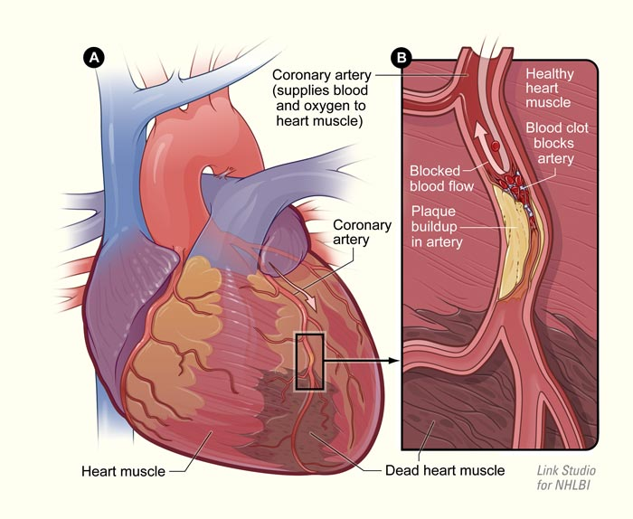 Heart Disease Report Anatomy Attack Blood Chest Cholesterol